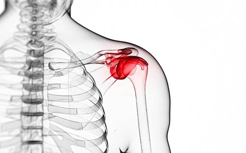 Pain Edu Shoulder Pain Physical Therapy Specialists